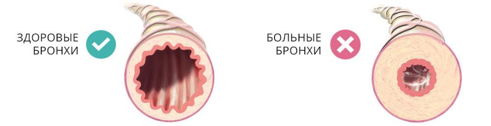 Здоровые бронхи и больные фото