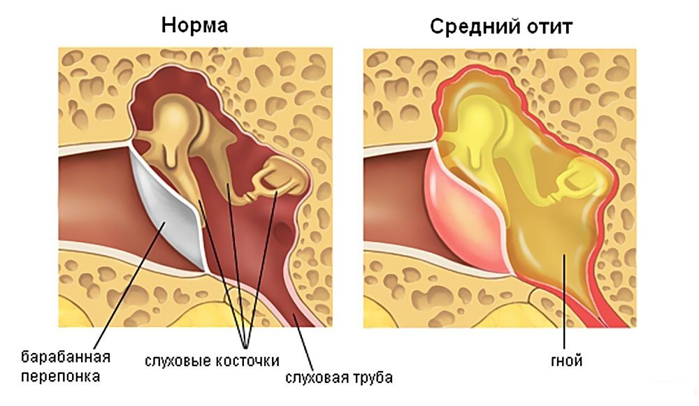 Средний отит норма и болезнь1